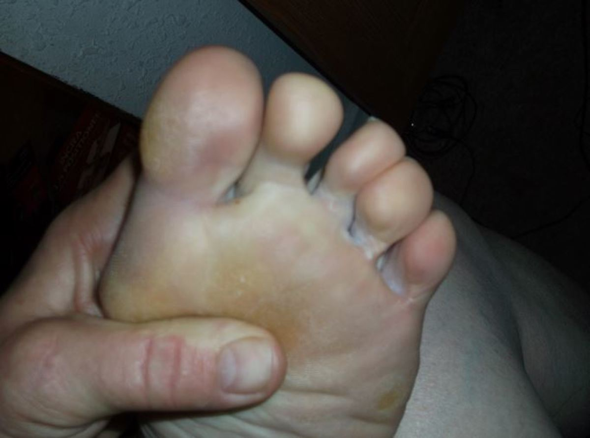 In between my toes was always where my troubles were