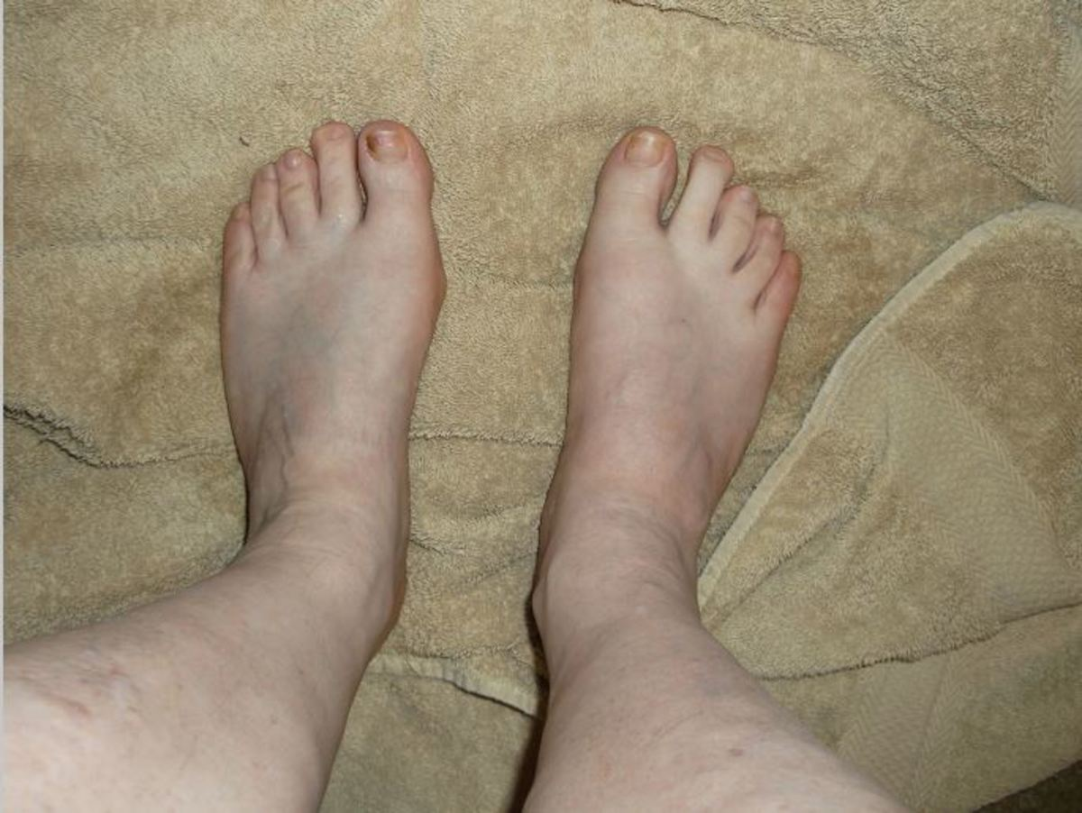 Both feet feel better