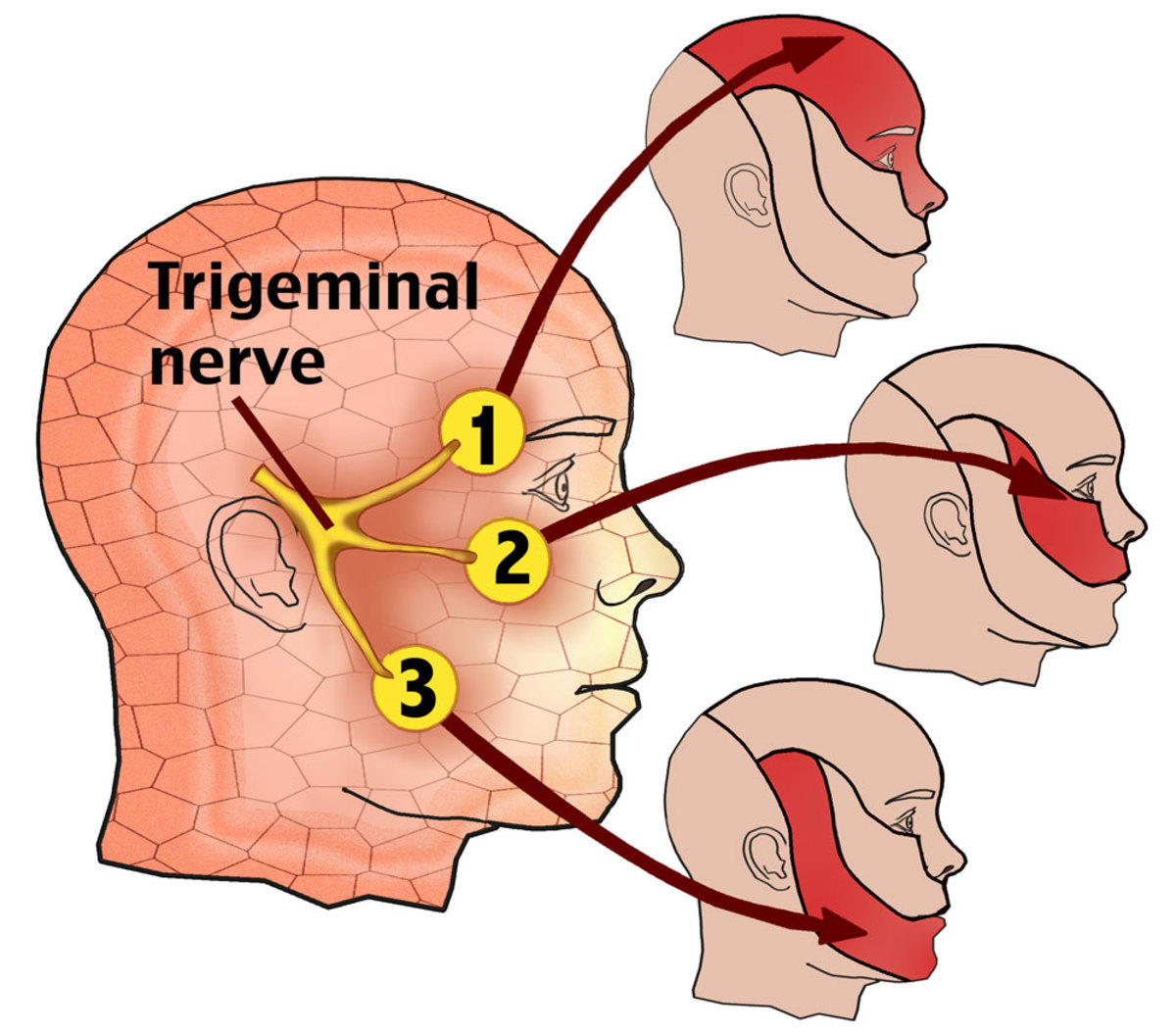 The three areas that are effected. Tri means three major nerves that go to the face.