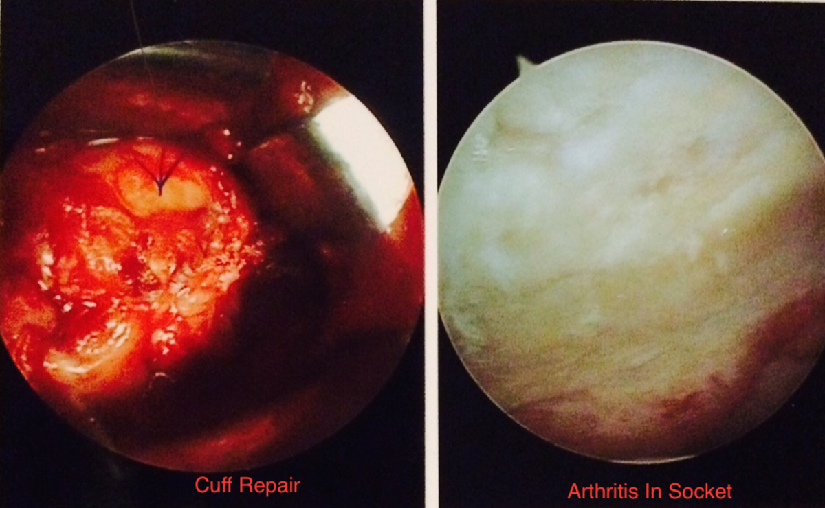 Here's the cuff repair and photo of the extensive arthritis before it was cleaned up. The surgeon had to use both techniques, arthroscopic and direct visualization (open incision) because of the extent of repairs required.