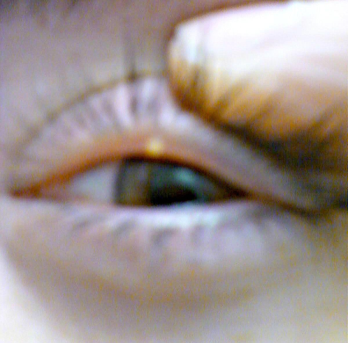 Stye under eyelid