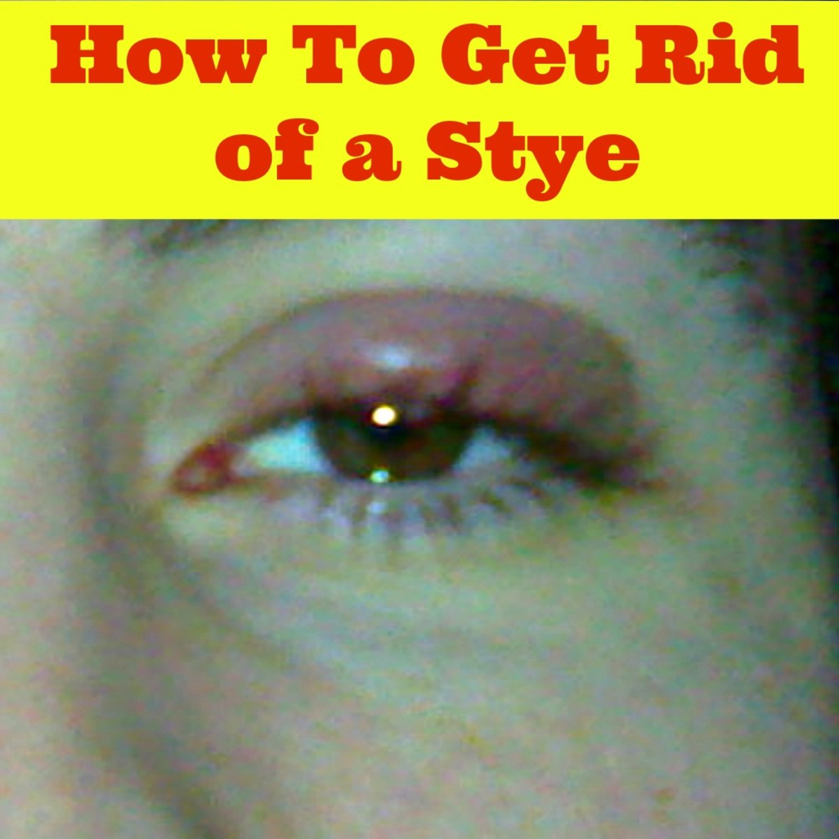 How To Get Rid of a Stye in Your Eye |Eye Stye Treatment