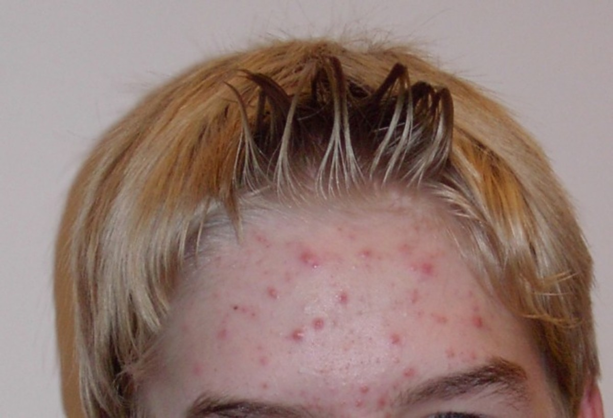 Use aloe vera to get rid of acne