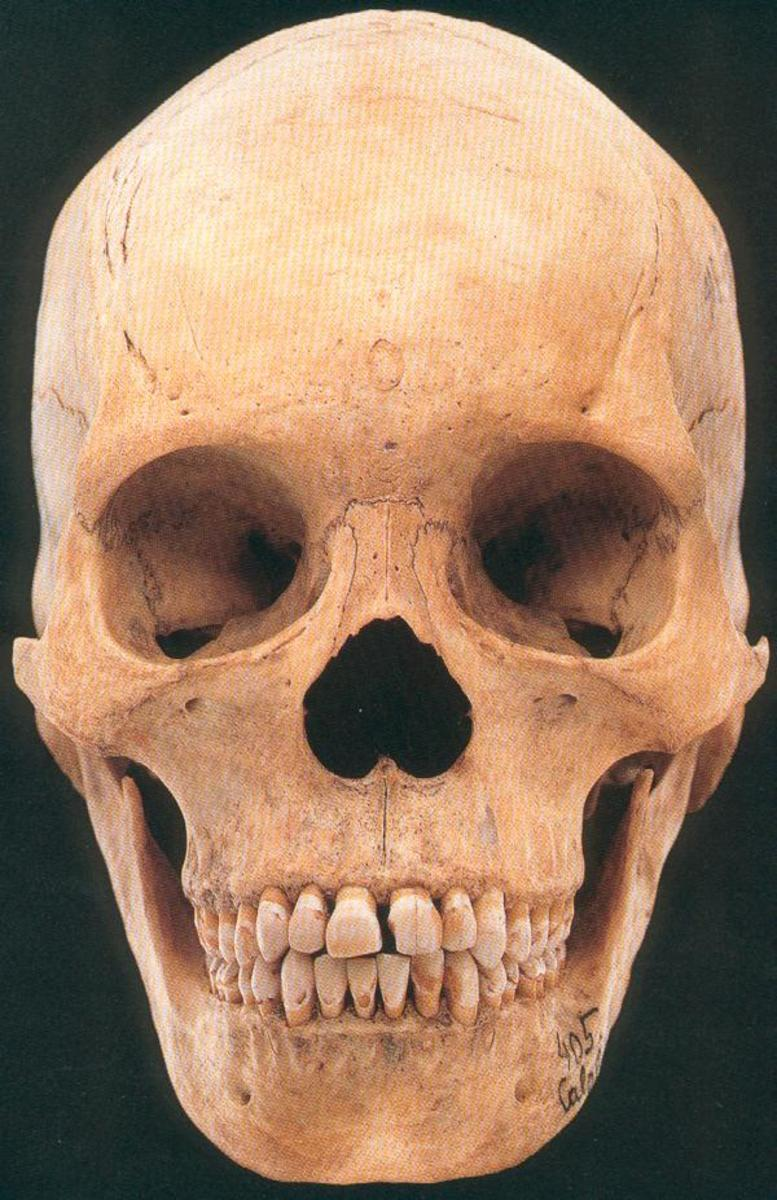 This is a homo sapiens skull.