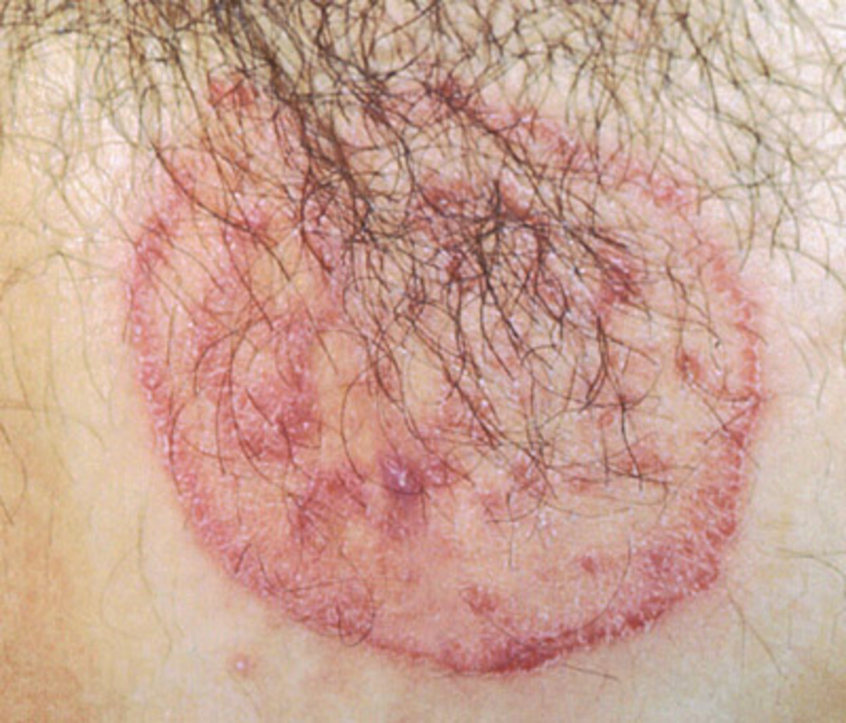 Dermatophytes that causes Cutaneous mycoses in humans and How to deal with it.