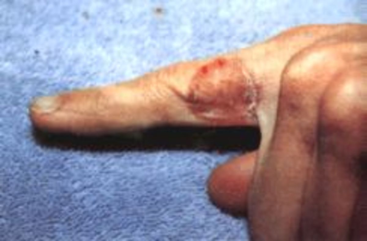 Tinea infection of the Hand