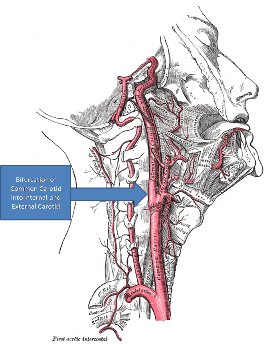 Common Carotid Artery and bifurcation forming the Internal and External Carotid Arteries
