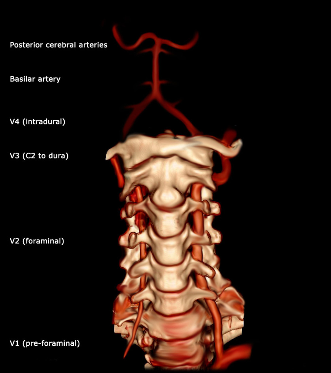 Bilateral Vertebral Arteries. Note anterior fusion to form single Basilar Artery