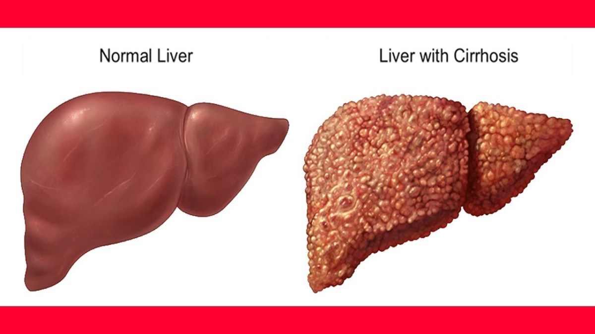 Normal Liver vs Liver Cirrhosis