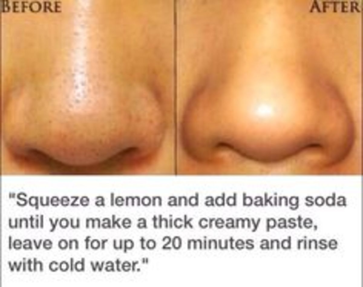 Best Proven Remedies to Reduce And Shrink Skin Pores