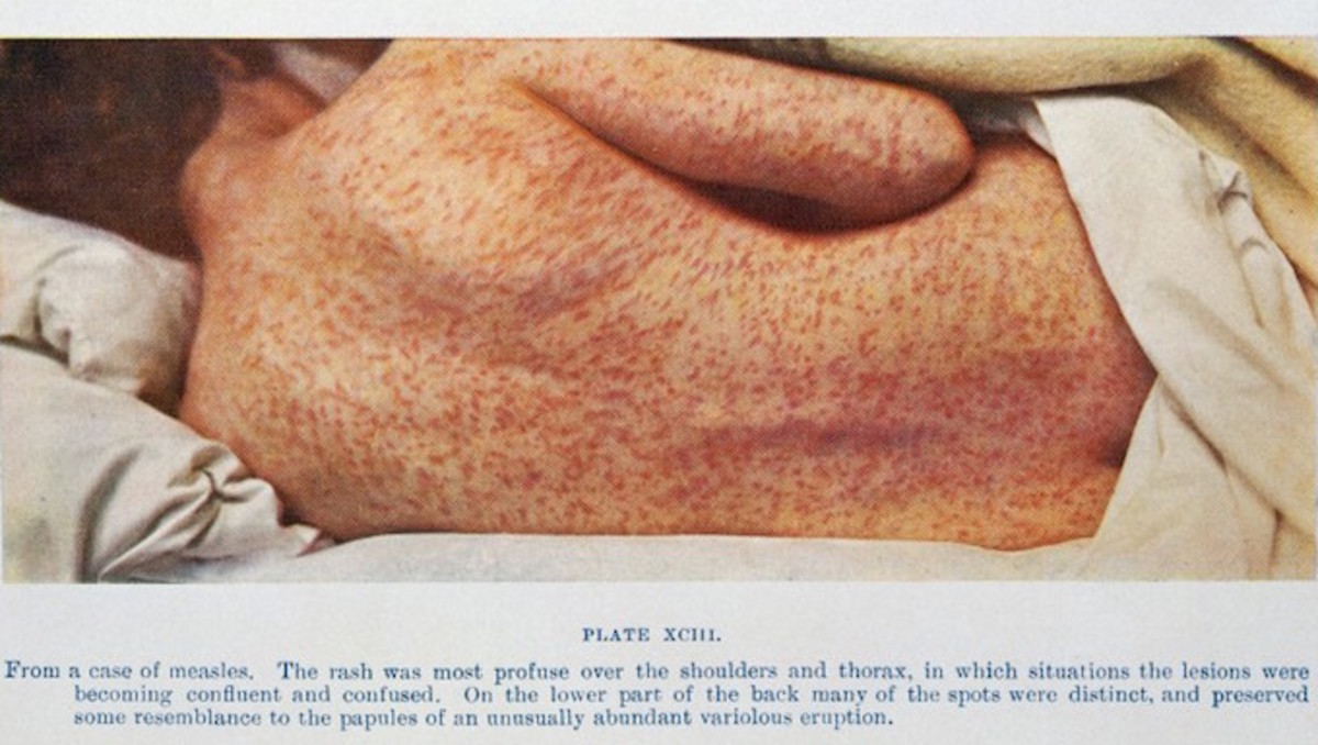 Symptoms of measles include a red, spotted rash that spreads across the skin. Yikes.