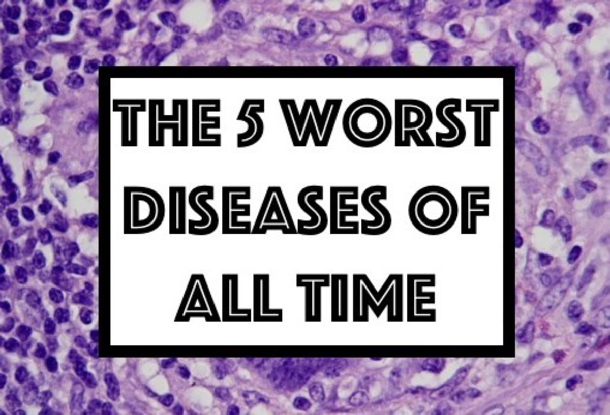The 5 Worst Diseases in History