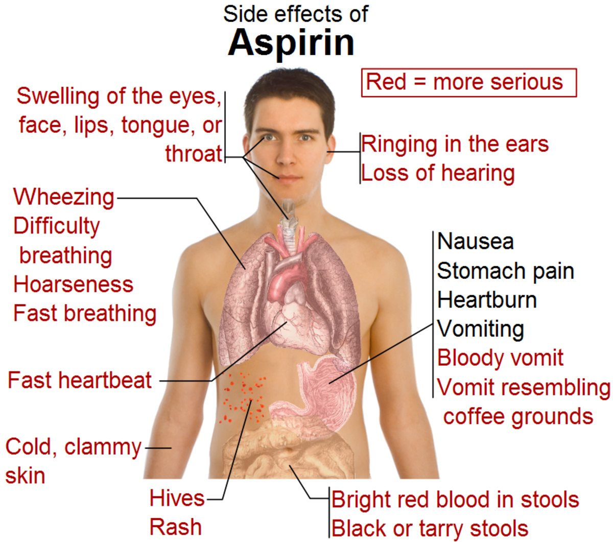 Even the side effects of aspirin are more serious than CBD.