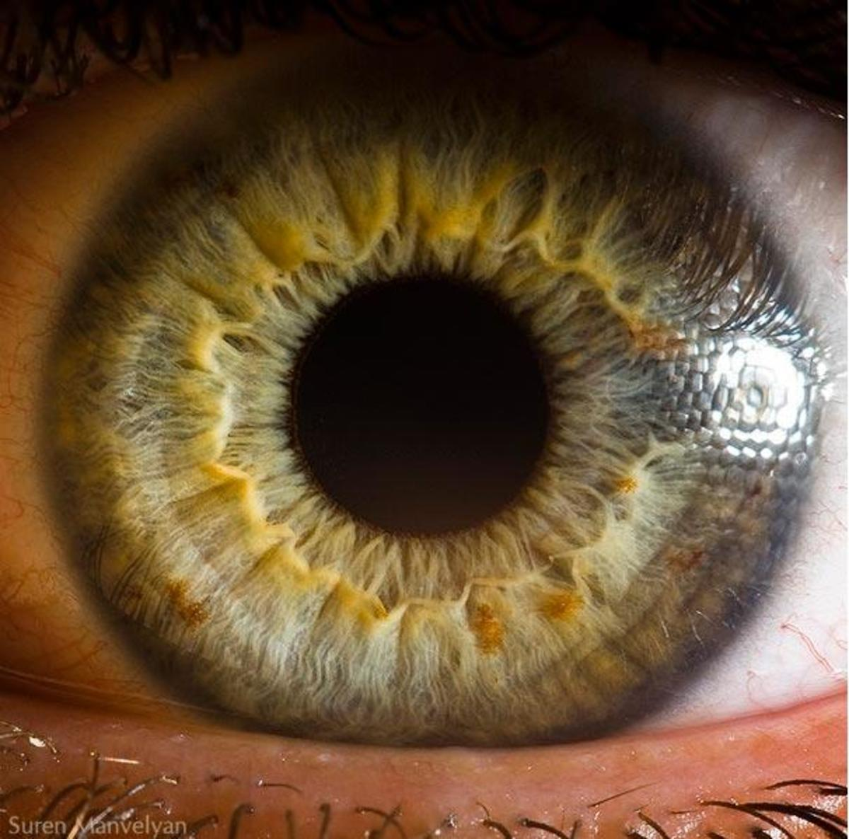 laser-eye-surgery-in-pakistan-locations-prices-special-offers