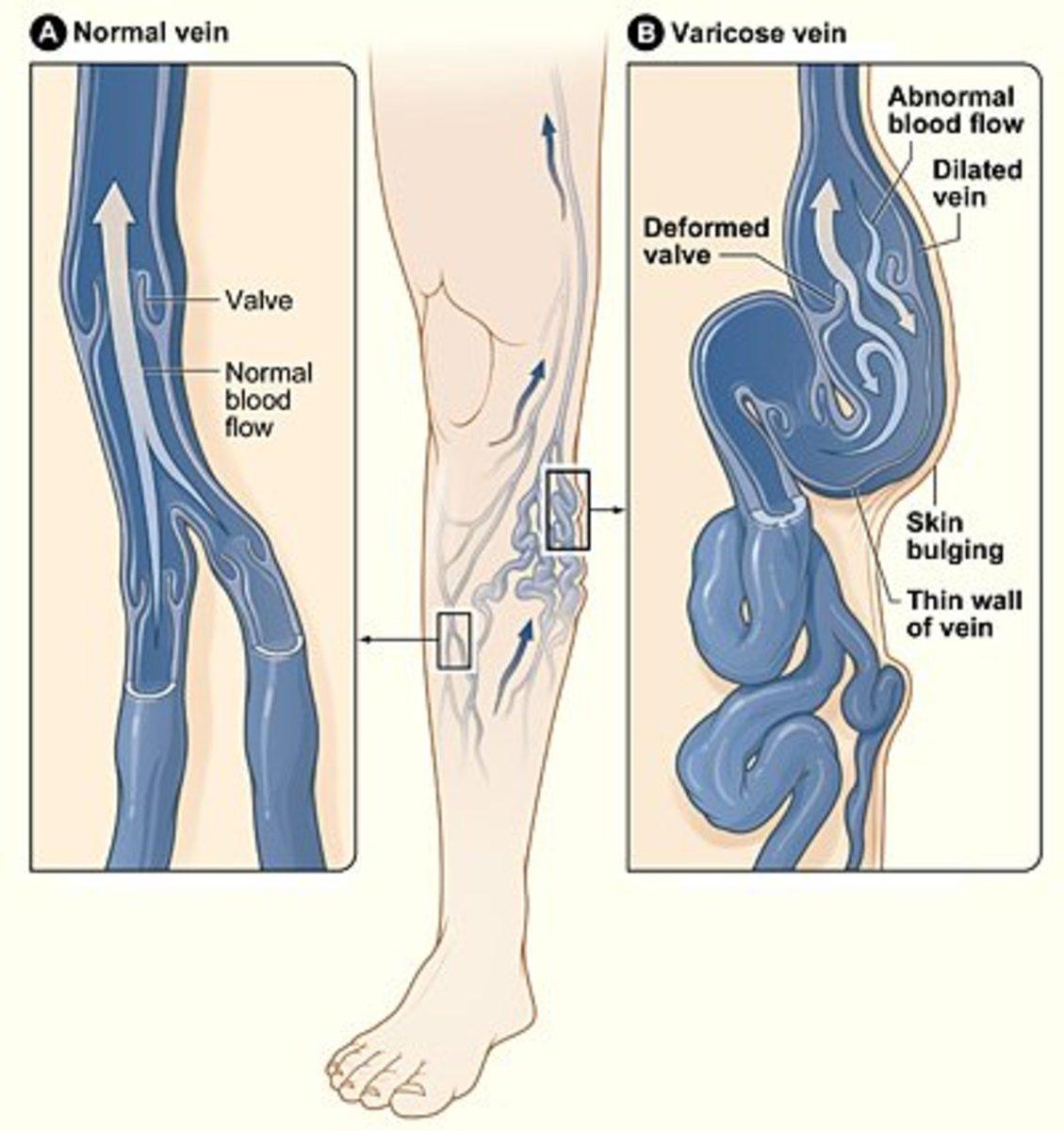 apple-cider-varicose-veins