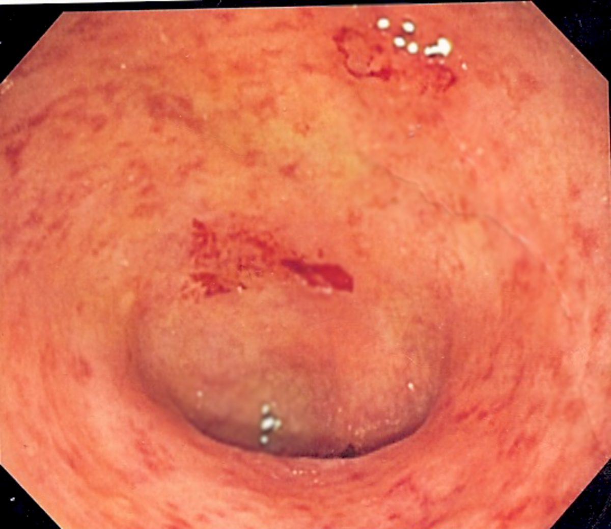 Ulcers on the lining on the large intestine.
