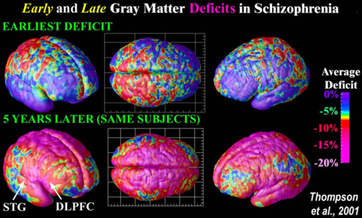 Advancement made in Schizophrenia research!