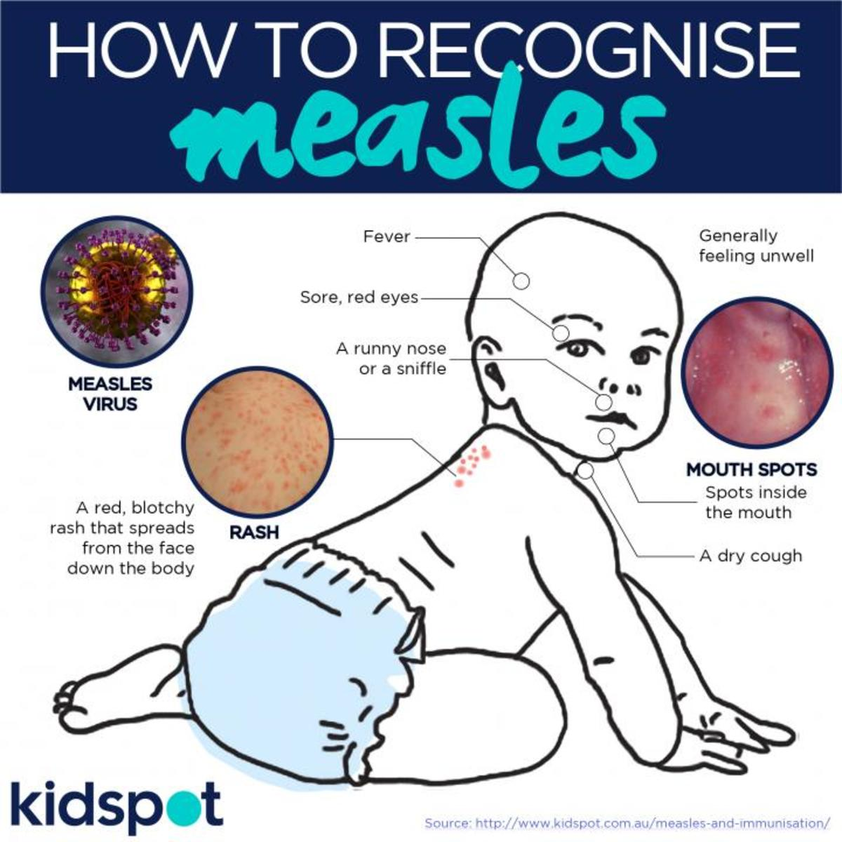 A quick guide to the symptoms of measles.