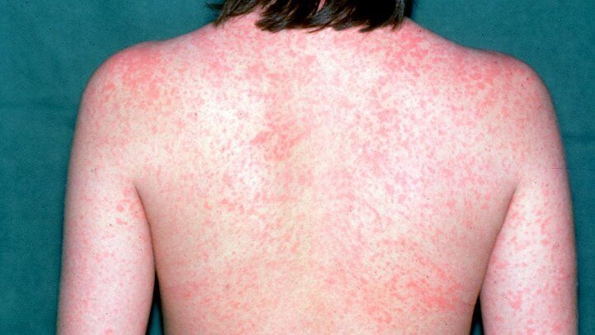 Red itchy rash that comes from measles.