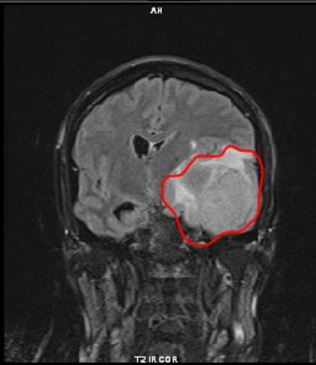 My Tumor: Full left frontal lobe