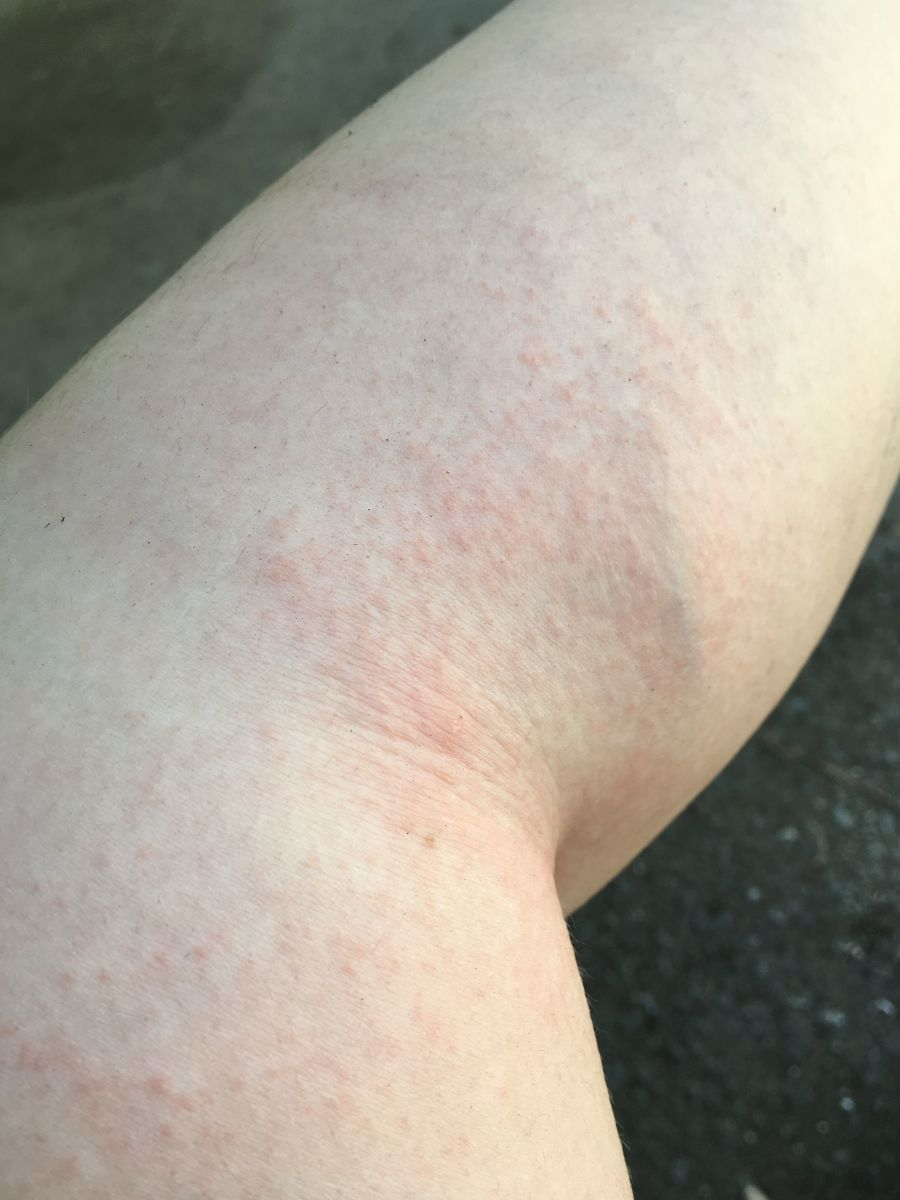 A photo of my leg on the side and behind my knee with a severe periwinkle allergic reaction