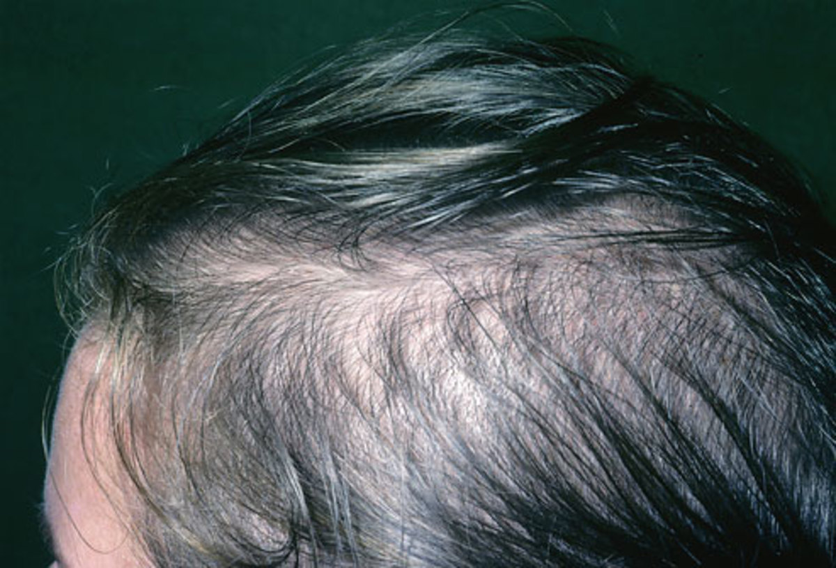 Male thinning hair