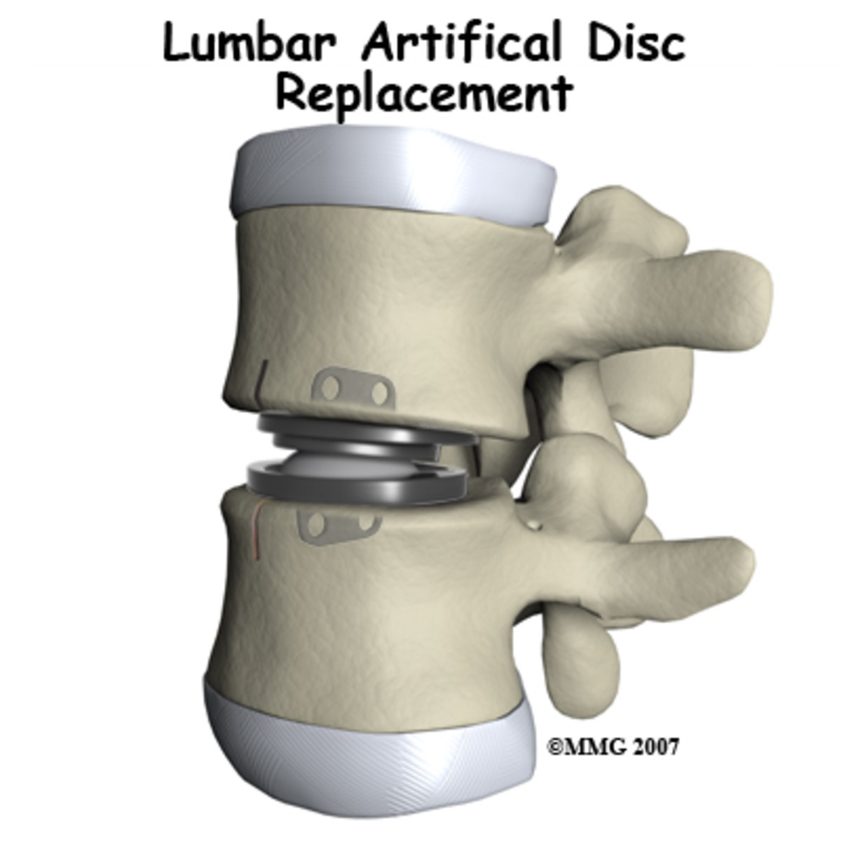 How an artificial lumbar disc replacement procedure is done?