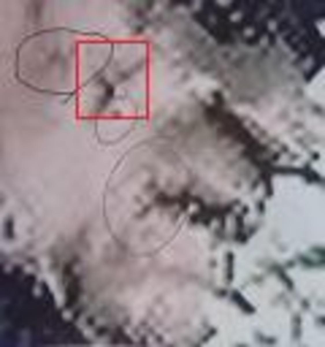 The 'MOST WANTED ENHANCED PHOTOGRAPH' left out another scar--the 4th one that matches the photograph w/President Allende.