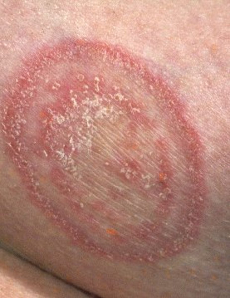 Natural Fungal Infection Treatment With Essential Oils
