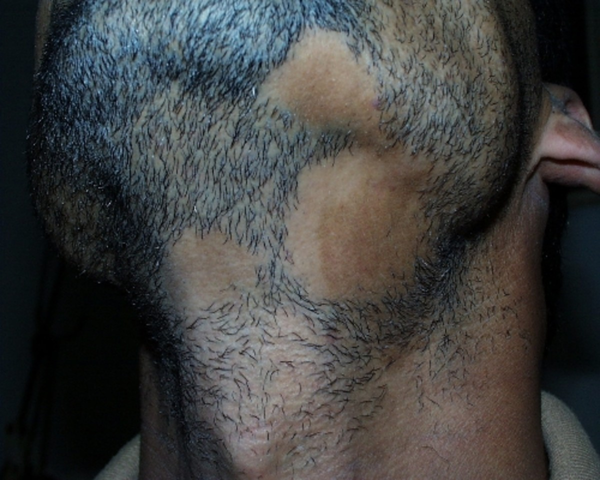 Alopecia Barbae An Explanation For Bald Spots In Your Beard Hubpages