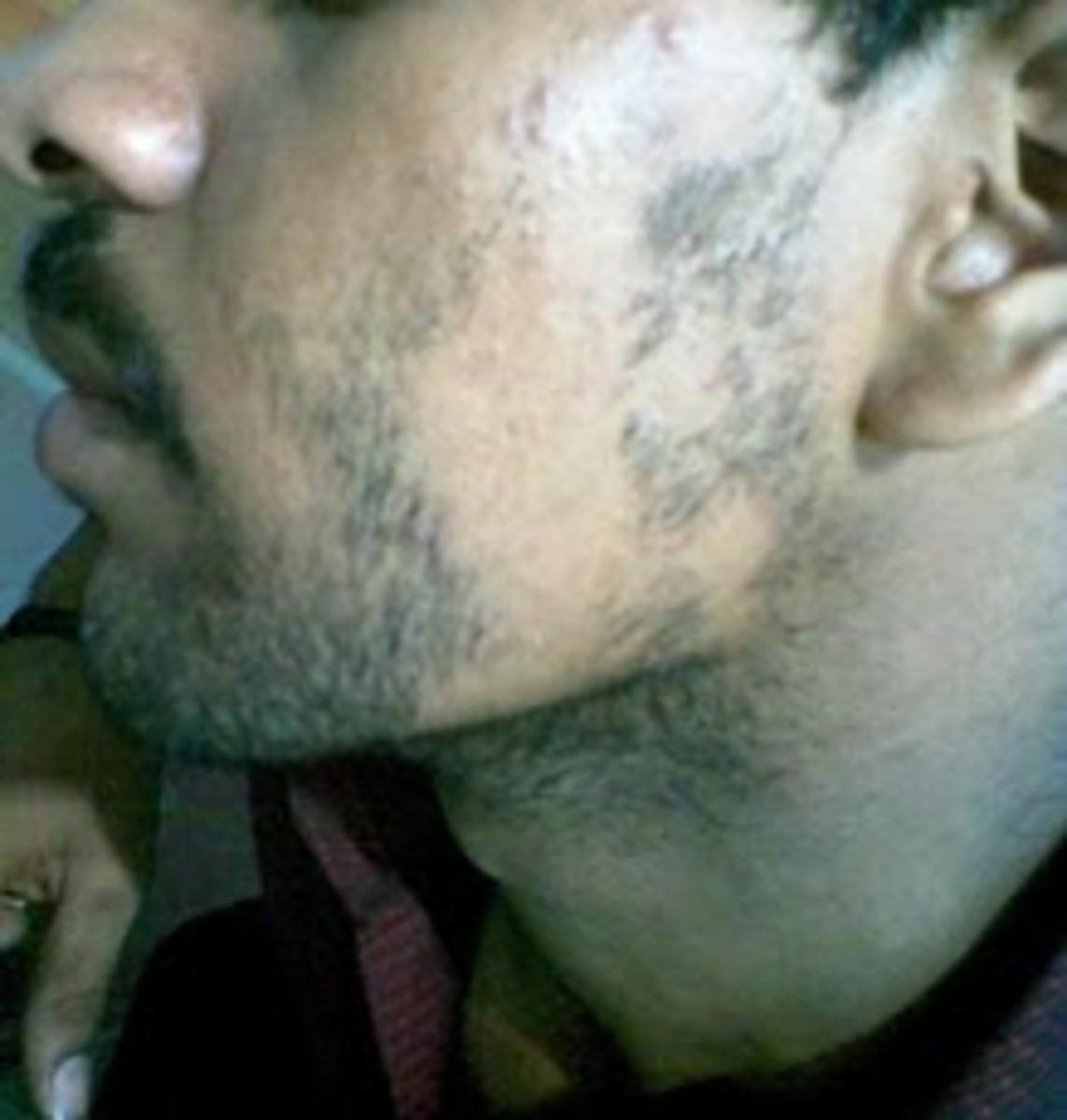 alopecia-barbae