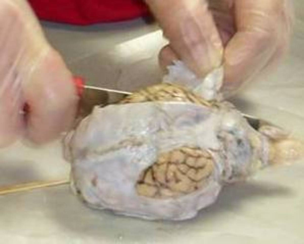Removing Dura Mater