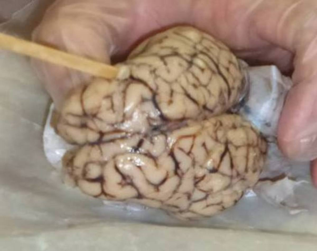 Inspecting the brain before making any cuts