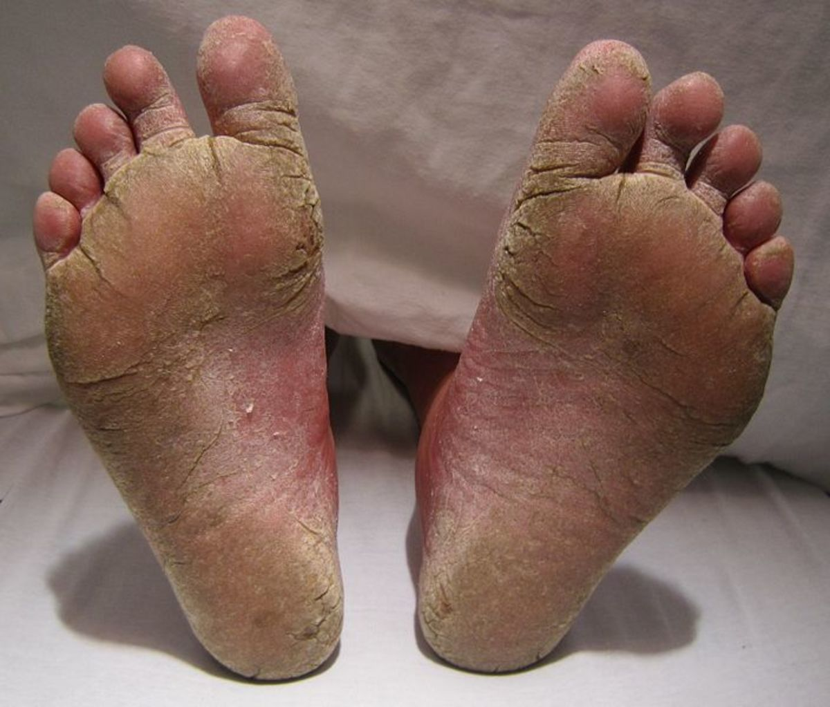 A severe case of athlete's foot
