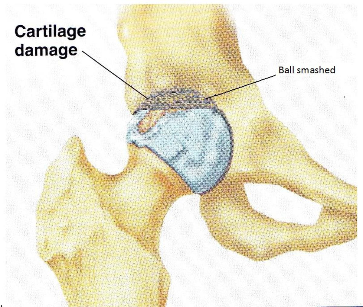 Damaged Ball of the Femur from an auto accident