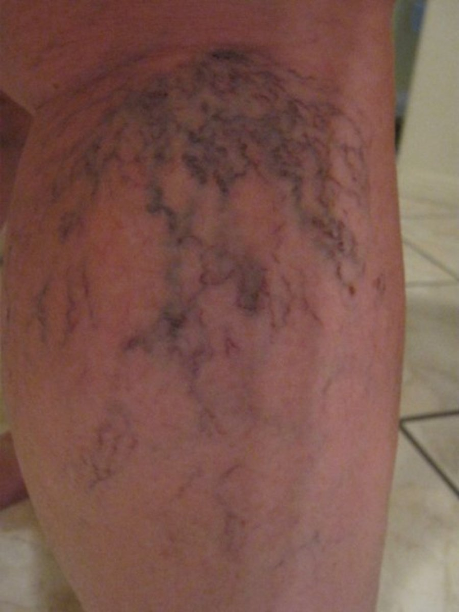 A before photo of my lower right leg before treatments. As you can see, the veins are pronounced and dark.