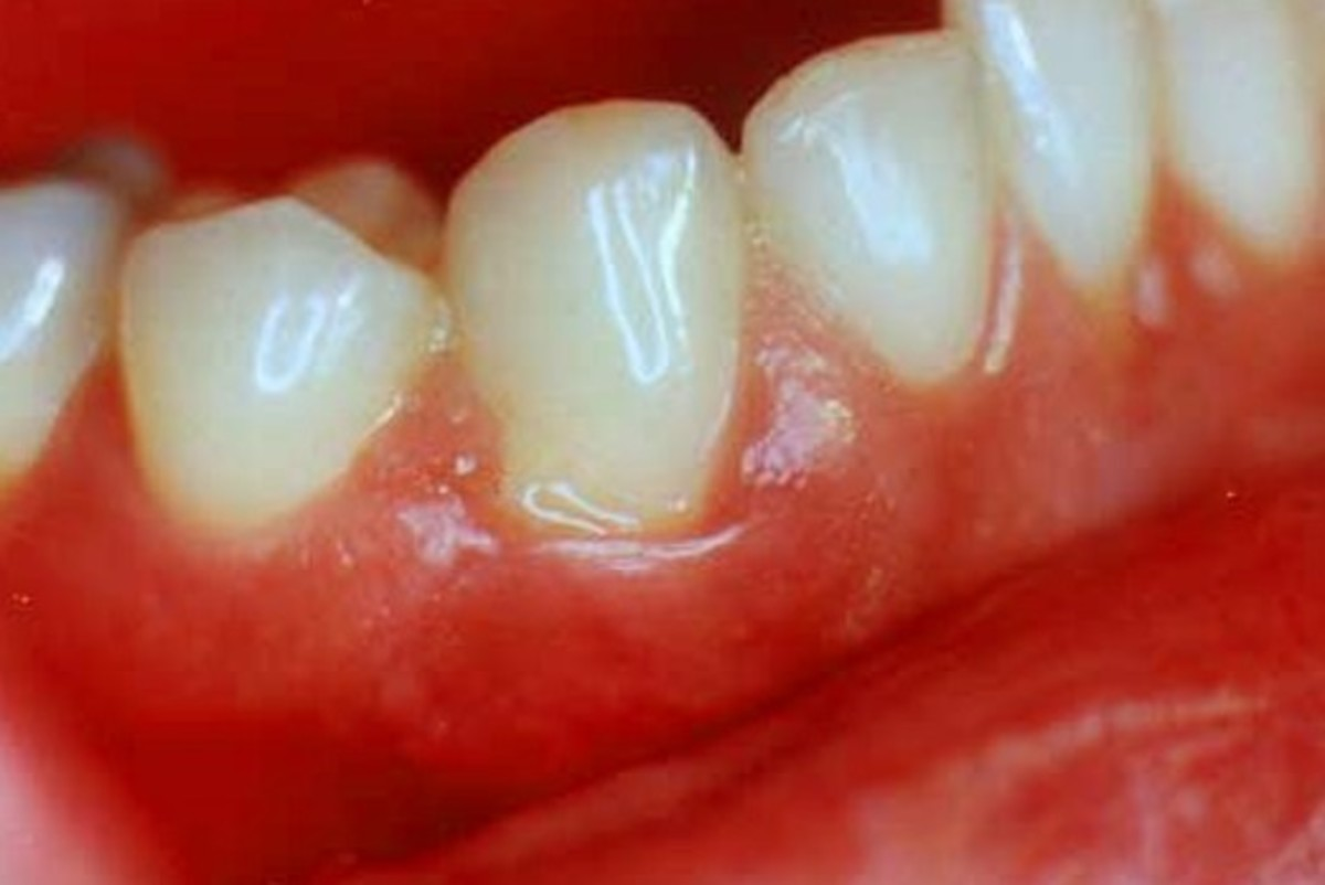 Swollen Gums - Symptoms, Causes, Treatment, Pictures