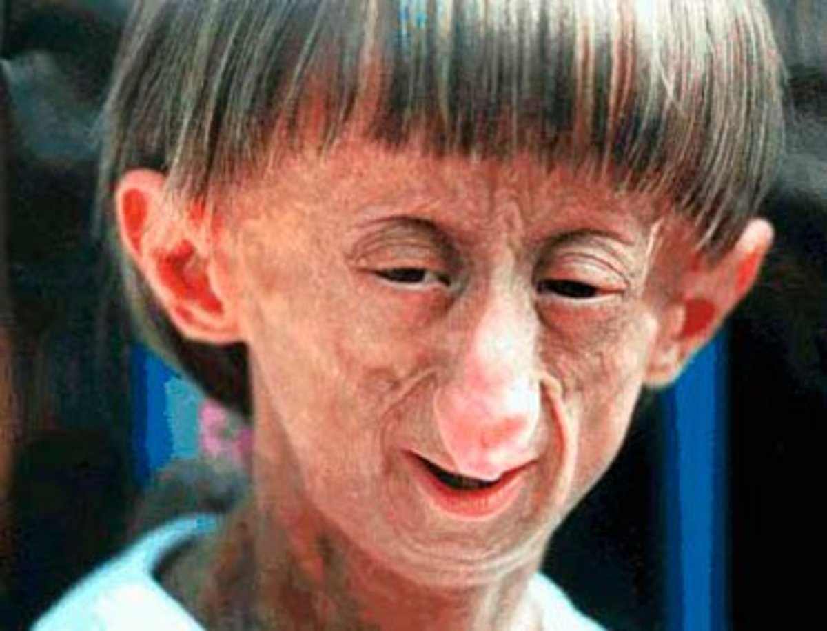 blog.medfriendly.com Progeria this child could be anywhere between 3 years old to approx 10 years old!