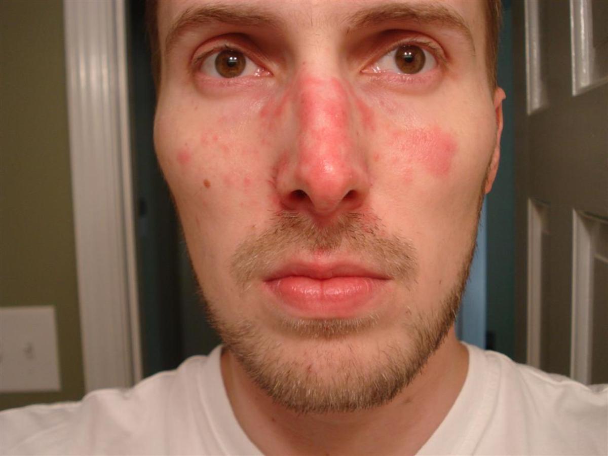 Great Skin Care Tip-Seborrheic Dermatitis