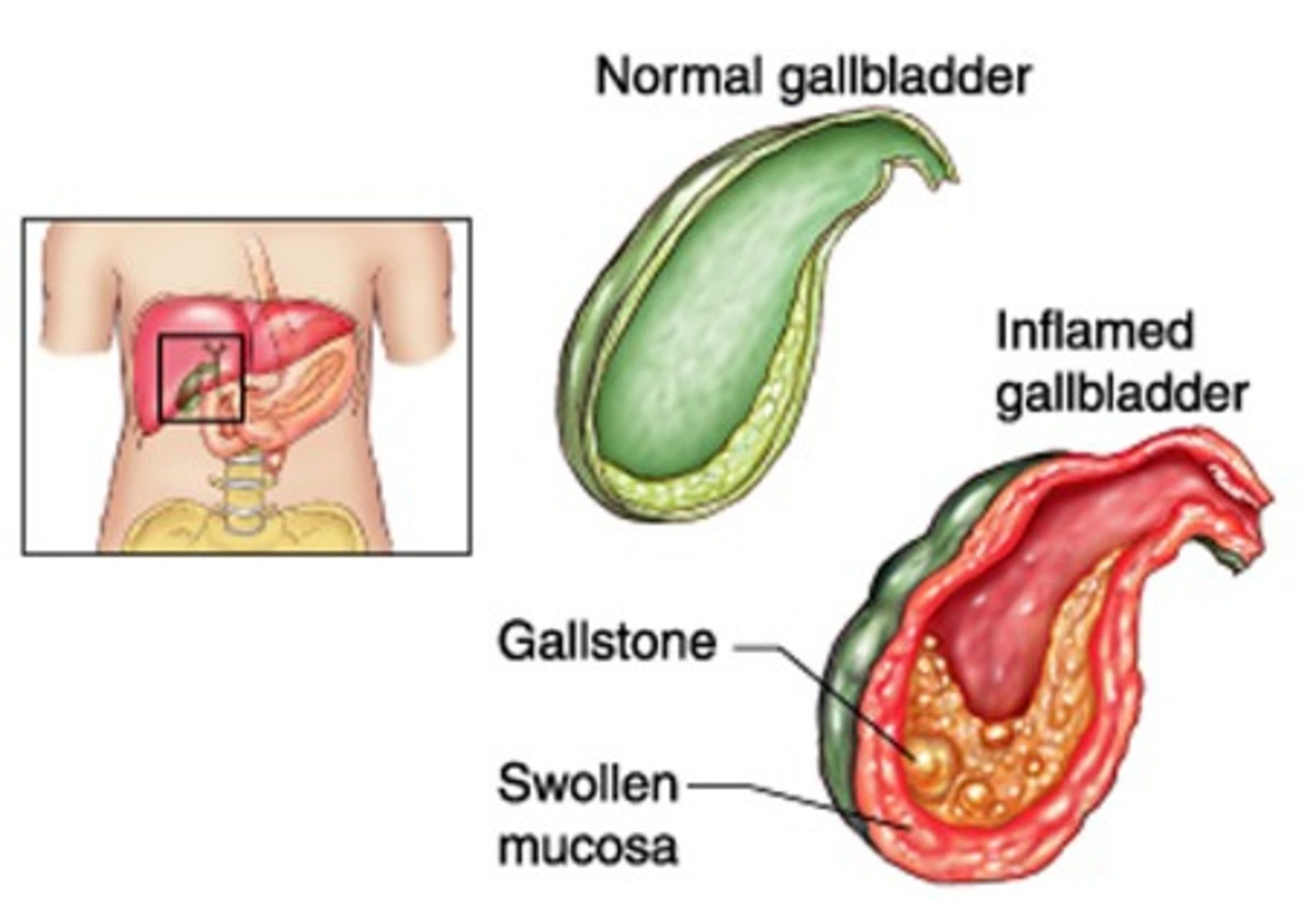 Cholecystitis - Symptoms, Causes, Diagnosis, Treatment