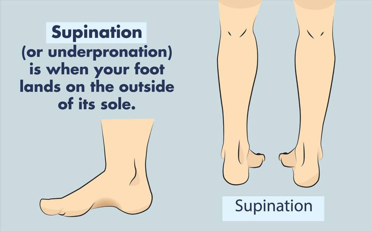 Supination: Which Footwear Is Best