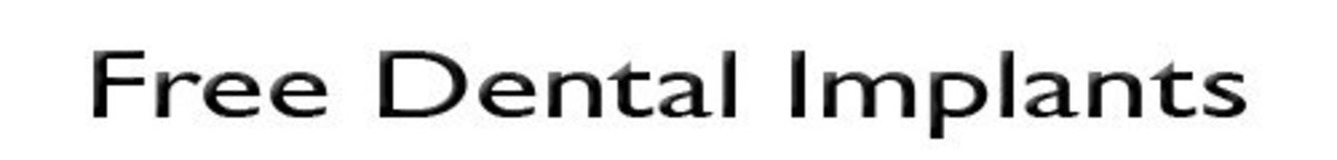 free-dental-implants-info