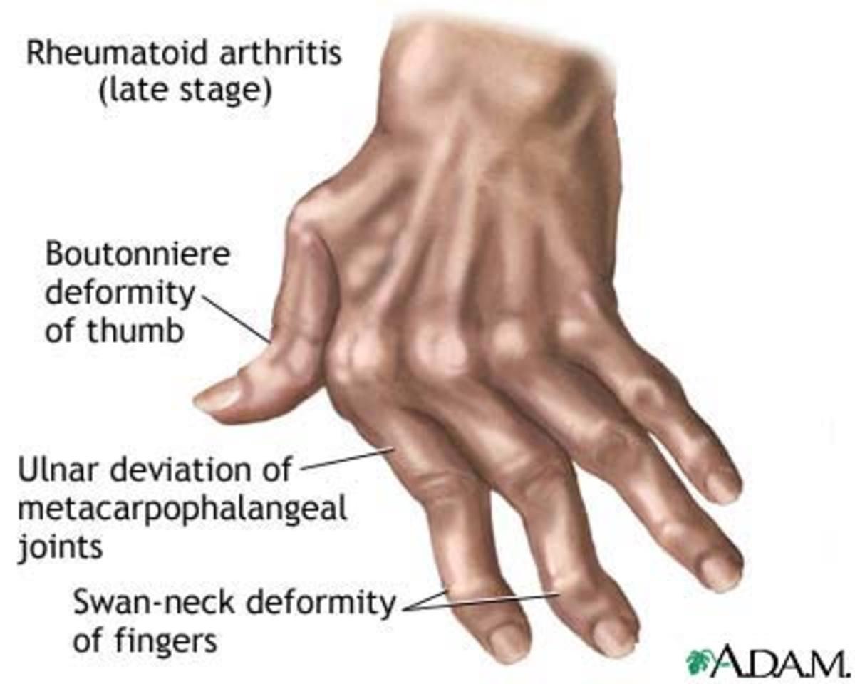 Anti-inflammatory Herbs for Arthritis