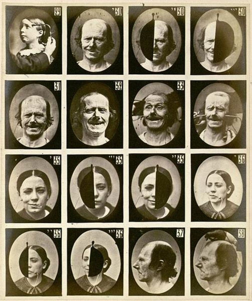 Facial expressions triggered by electric stimulation. Guillaume Duchenne, 1862 (public domain).