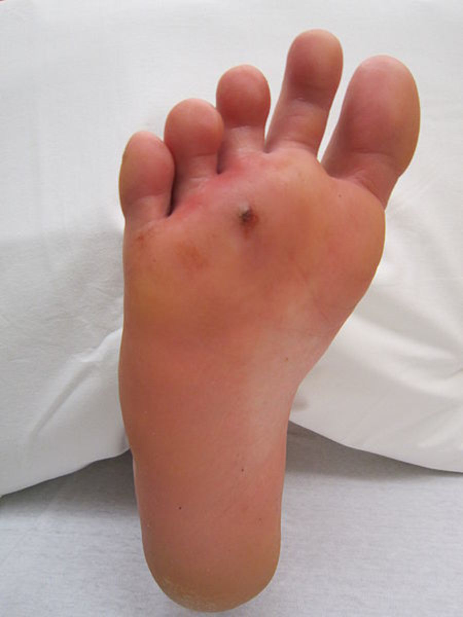 An infected puncture wound on the sole of the foot