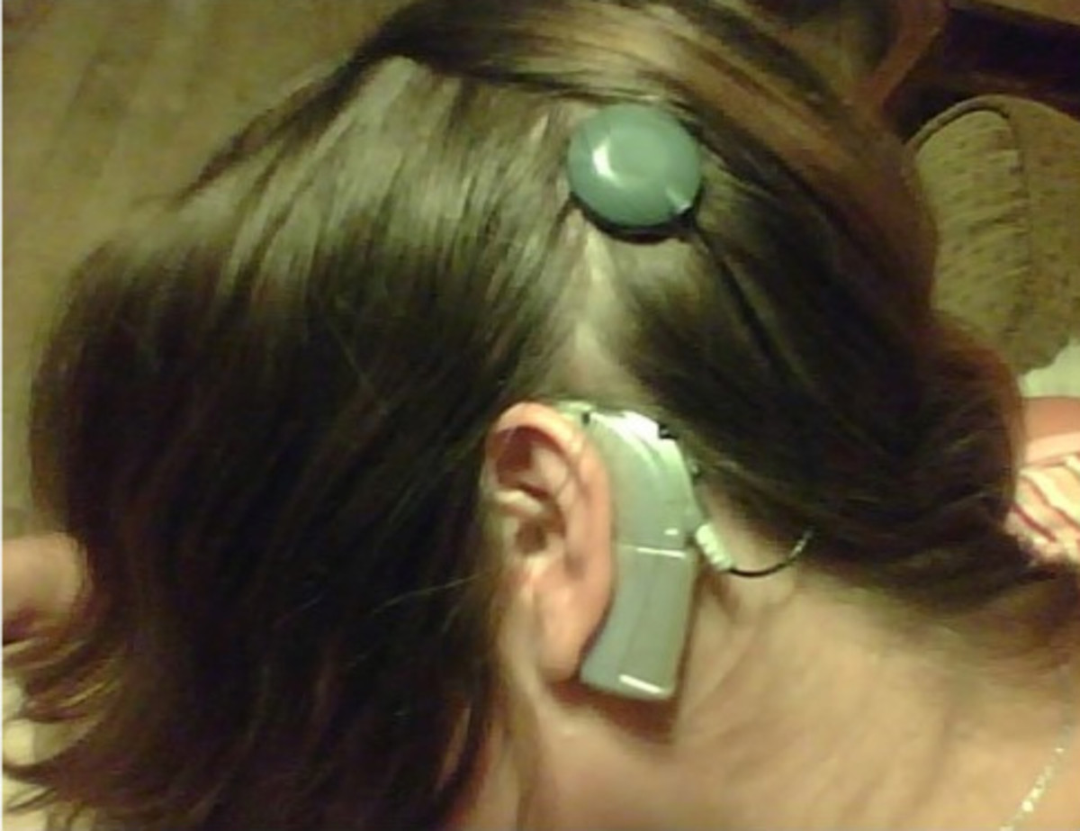 This is me from a cell phone picture.  There is the silver Auria.  Another useful fact is that this is a BTE (behind-the-ear) product, so named for very obvious reasons.