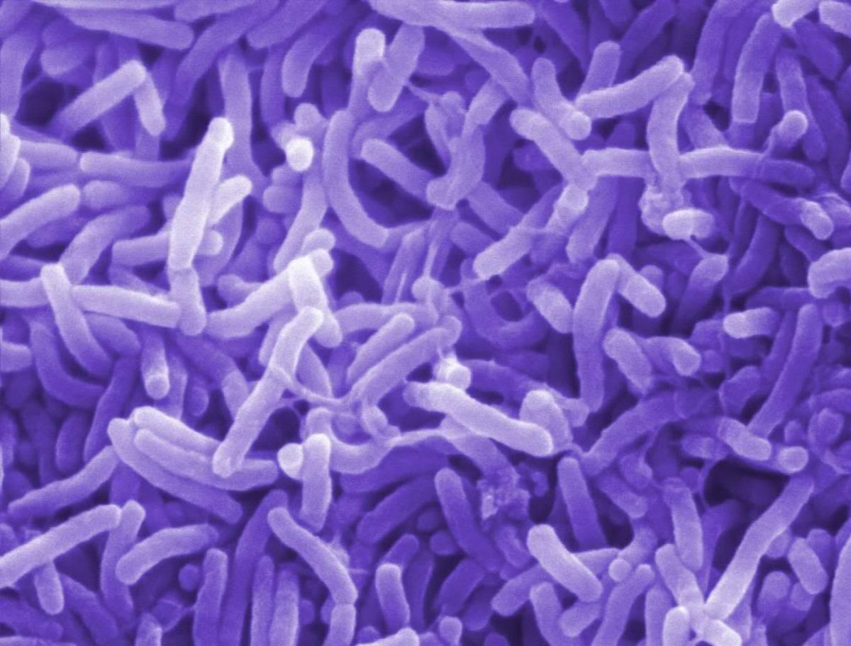 Nasty bacteria!