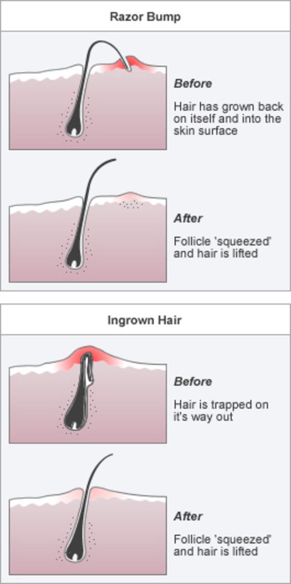 buy-tend-skin-for-men-and-women-no-more-shaving-bumps