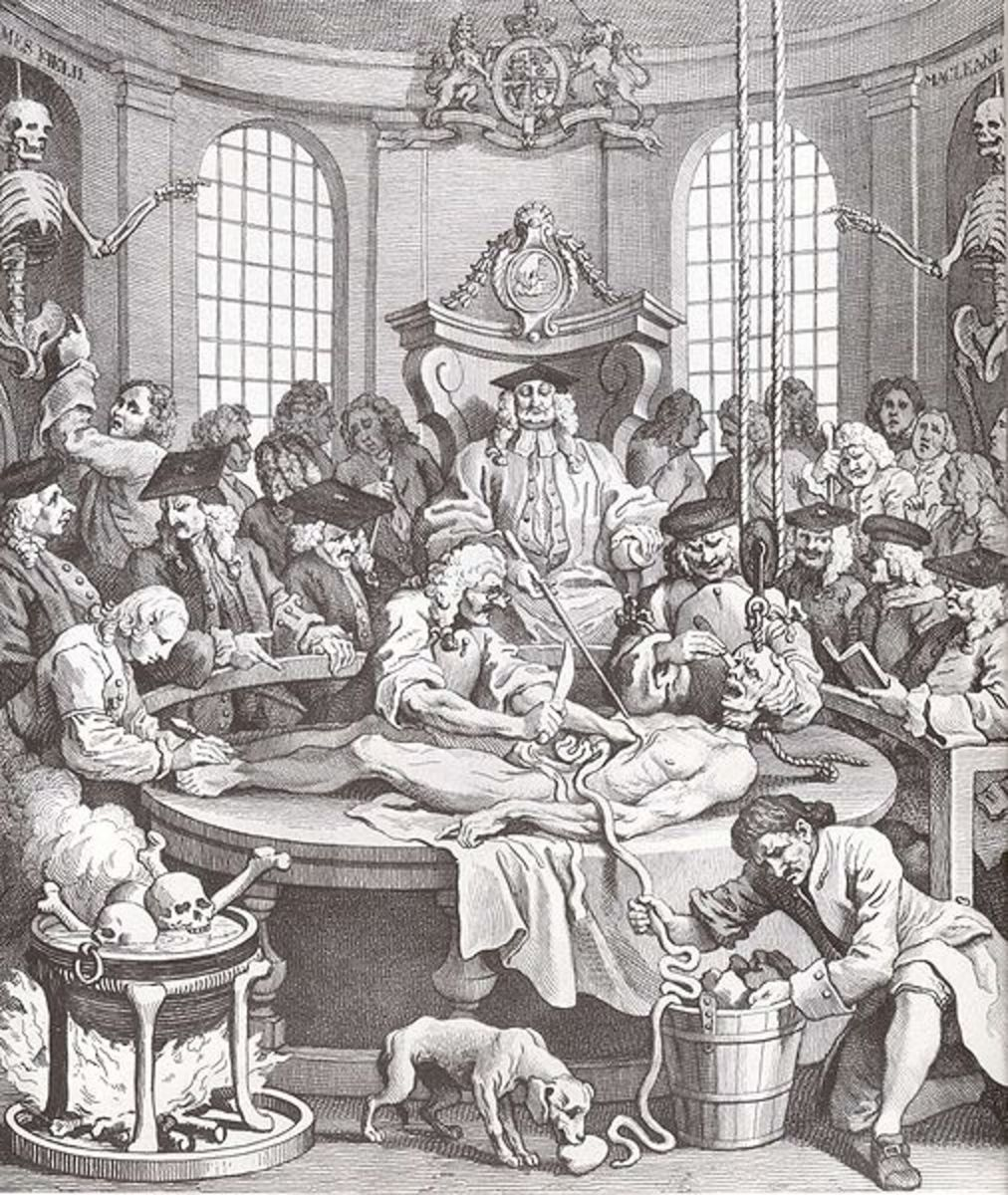 William Hogarth's The Reward of Cruelty. In the 18th century the bodies of criminals were dissected and used for medical research. Photo courtesy of wikimedia.org.