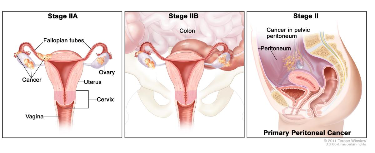 Ovarian Cancer - Causes And Treatments